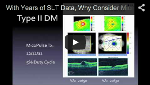 With Years of SLT Data, Why Consider MicroPulse?